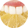Astuce: Soins dentaires maison home made